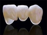 Răng sứ Cercon - Giải pháp phục hình đã được chứng minh
