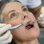 Khi răng miệng già theo tuổi
