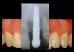 Labo Implant