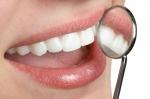 Dentcoat - Cuộc cách mạng bảo vệ răng tự nhiên